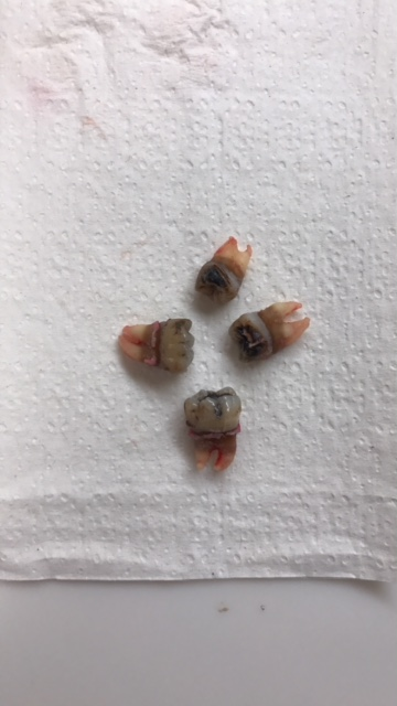Wisdom Teeth Removal Later in Life - North Austin ...